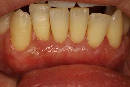 露出した根っこを歯ぐきの再生治療で覆った後の状態
