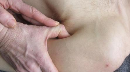Es wird die Triggerpunkt-Therapie mit der ischämischen Kompression am M. deltoideus dargestellt