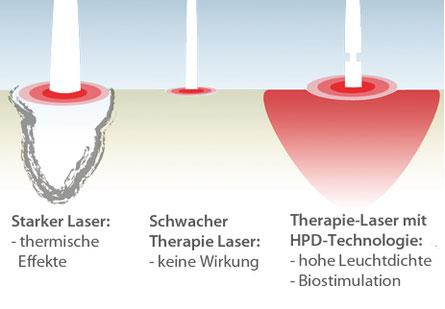 Grafik Laser-Akupunktur