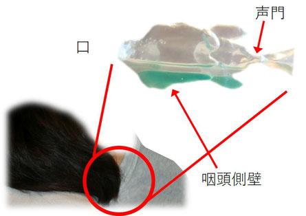 完全側臥位では声門より低い位置に唾液や鼻水は溜まるので、誤嚥しにくい