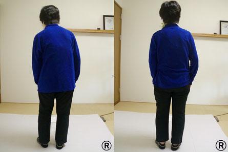 しんそう福井武生では症状は姿勢に現れると考えて、体の姿勢を改善していきます