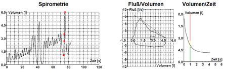 Lungenfunktionstestung (Spirometrie) - Saki