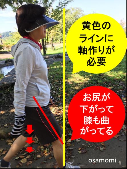 歩き方の改善は昭島市のオサモミ整体院。骨盤後傾!