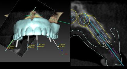 Nobel Clinician 3D-planning voor all-on-four