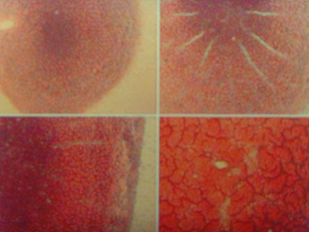 Dry Layer Test Blutkristallisationstest