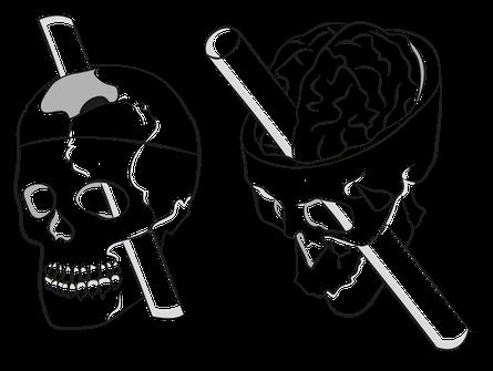 Crâne de Phinéas Gage et la barre à mine ayant emportée son lobe préfrontal