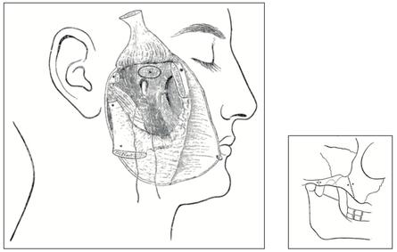 Fig. 1 — L'intervention de W. Rose permettant d'accéder au foramen ovale après dissection du nerf mandibulaire [12]