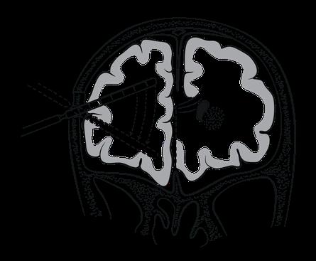 La lobotomie frontale latérale