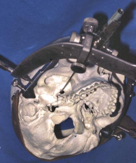 Fig. 6 — Cadre de stéréotaxie permettant de guider une trajectoire vers le foramen oval