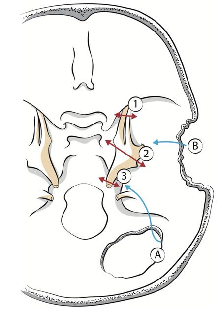 Fig. 4 – Les différentes voies d'abord du ganglion de Gasser (A) la voie sous-occipitale ; (B) la voie sous-temporale; (1) la neurotomie ; (2) la gassérectomie; (3) la neurotomie rétrogassérienne.