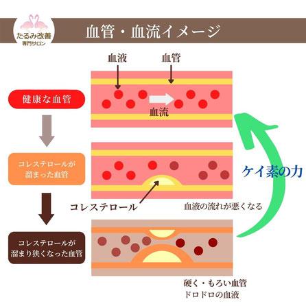 血管・血流イメージ