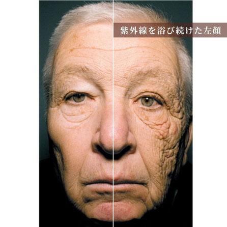 「光老化」紫外線による肌老化