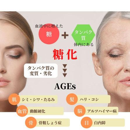 AGEs 糖化のメカニズム