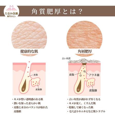表皮のシワは乾燥が原因