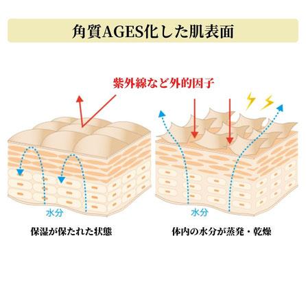 角質層のラメラ構造の乱れによる肌トラブル