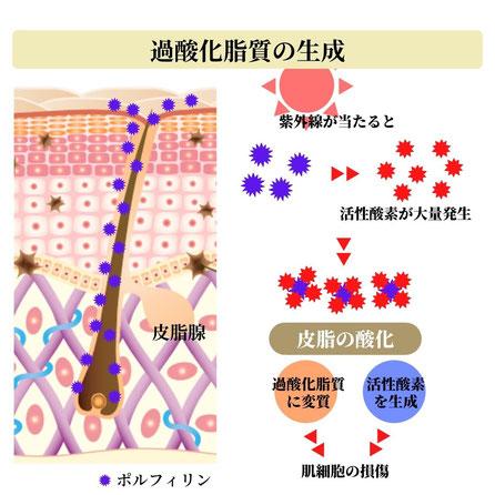 皮脂の過酸化脂質への変性