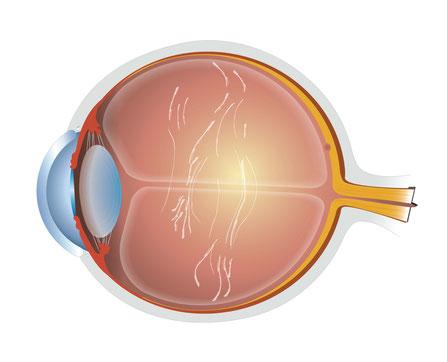 Querschnitt des Auges mit Glaskörpertrübungen, Copyright: Ellex Medical