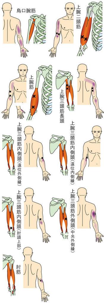 肘・前腕・手に痛みをもたらすトリガーポイント