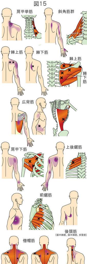 肩甲挙筋 斜角筋 棘上筋 棘下筋 広背筋 肩甲下筋 上後鋸筋 前鋸筋トリガーポイントによる体幹の痛み