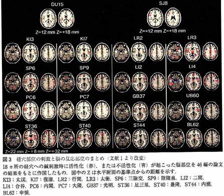 経穴部位の刺激と脳の反応部位のまとめ