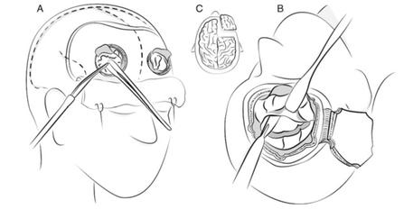Exemples de topectomie préfrontale. A : topectomie orbitofrontale bilatérale par tréphine B et C : topectomie préfrontale élargie