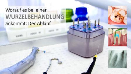 Moderne Methoden der Wurzelbehandlung