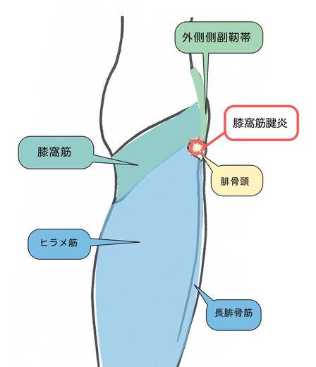 膝窩筋腱炎説明