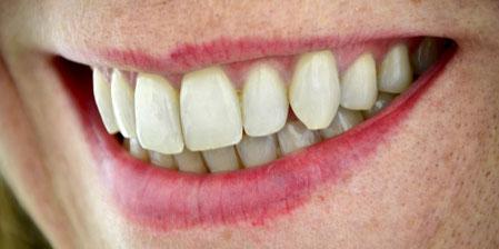 Zähne und gesundes Zahnfleisch