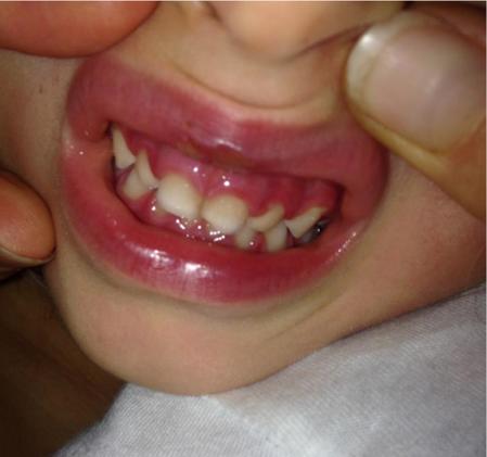 gengive gonfie e dolorose nei bambini