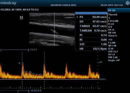 fisioterapia-ecógrafo