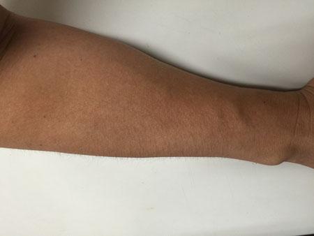 昨日実験した右腕の本日の状態 全くかぶれることなく平常そのもの あの植物では(柴垣は)かぶれないことが分かった