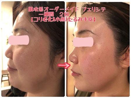 岐阜県多治見市の肌改善エステリトハピですニキビたるみしわシミ毛穴赤みでお悩みの方化粧品代理店様募集中です