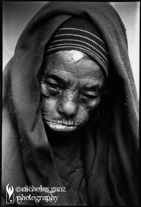An old woman in a home for leprosy patients outside the capital Kathmandu.