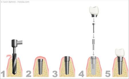 Die einzelnen Schritte bei der Implantation