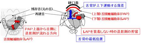 図12 舌接触補助床の働き