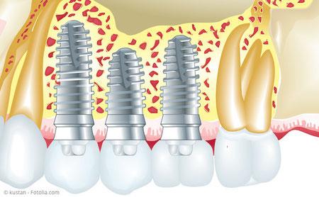 Implantate zum Ersatz fehlender Zähne