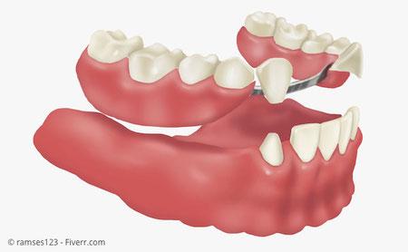 Herausnehmbarer Zahnersatz: Sog. Teleskopprothese