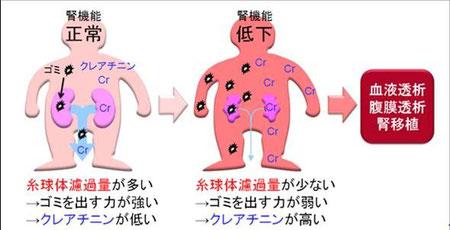 腎機能と血清クレアチニンの関係