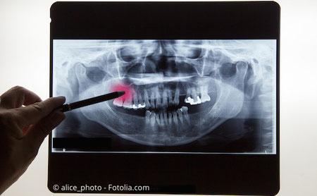 Zahnarzt Lutz Gehrke: Oralchirurgische Erfahrung seit 1995