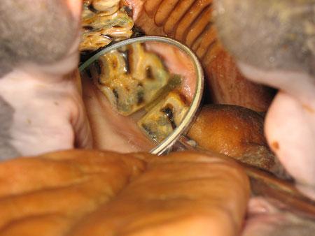 Untersuchung mit dem Zahnspiegel, pathologische Zahnlücke