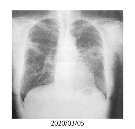 2020/3/5 肺の状態