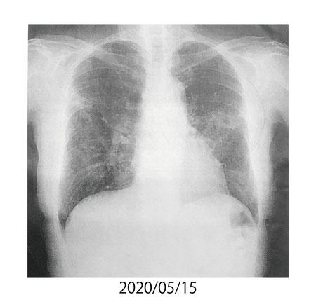 2020/05/15 肺の状態