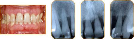 Zahnfleischzustand