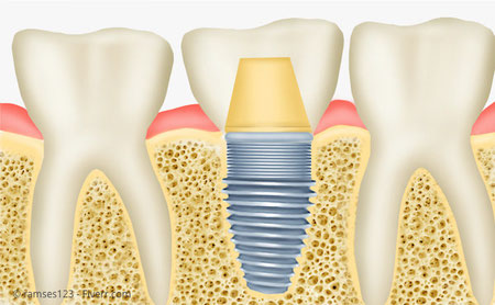 Implantat mit Krone: Die Nachbarzähne bleiben verschont.