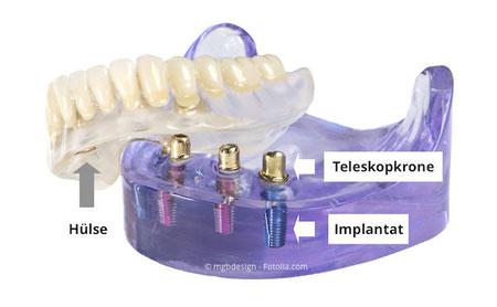 Implantate im Unterkiefer mit sog. Teleskopkronen, auf die der Zahnersatz aufgesteckt wird.