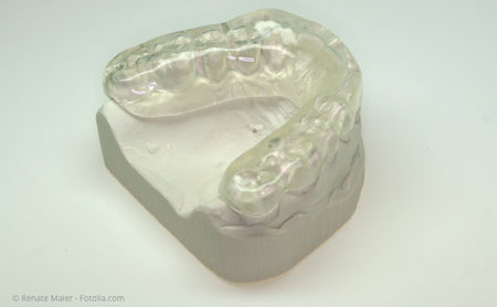Eine Aufbiss-Schiene, die gleichmässige Kontakte zwischen den Zahnreihen herstellt und dadurch Zähne, Kiefergelenke und Kaumuskulatur entlastet.