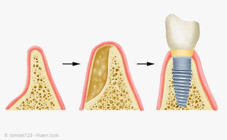 Seitliche Anlagerung von Knochenmehl und ggf. Knochenersatzmaterial zur Verbreiterung des Kiefers