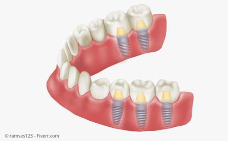 Implantate mit Kronen statt herausnehmbare Teilprothese