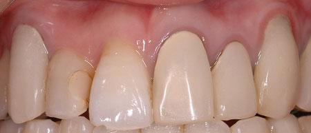 審美歯科 歯が長くなってしまった方