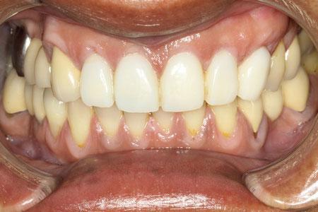 歯の長さを短く
